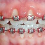 braces gums perio1