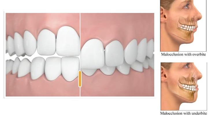 rattanasio, Author at Holmdel Dentist | Orthodontics | Braces ...